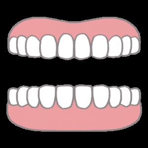 入れ歯の模型のイラスト